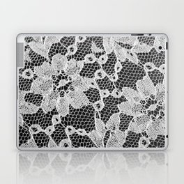 black and white laced Laptop & iPad Skin