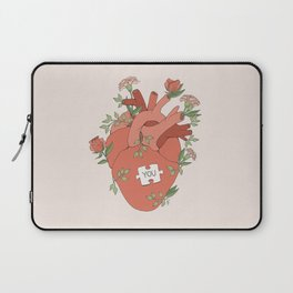 The Missing Piece Laptop Sleeve