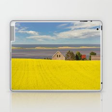 Bright Canola Laptop & iPad Skin