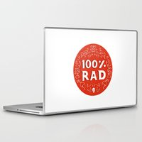 the 100 Laptop & iPad Skins featuring 100% Rad by Chase Kunz
