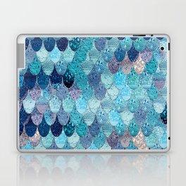 SUMMER MERMAID DARK TEAL Laptop & iPad Skin