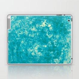 395 Laptop & iPad Skin