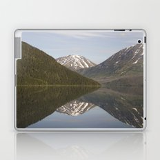 Reflections: Hourglass Laptop & iPad Skin