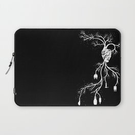 Looking for Collection - Heart Laptop Sleeve