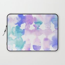 Dye Ovals Pink Turquoise Laptop Sleeve