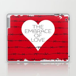 The embrace of love Laptop & iPad Skin