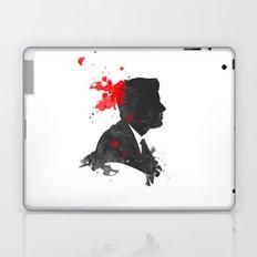 The Assassination of John F. Kennedy Laptop & iPad Skin
