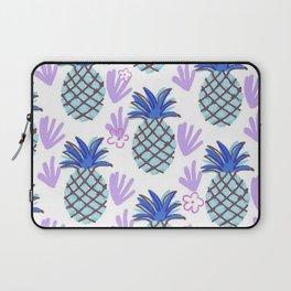 Blue Pineapple Laptop Sleeve