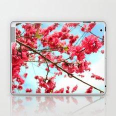 Tangible dreams! Laptop & iPad Skin