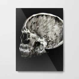 January 11, 2016 (Year of radiology) Metal Print