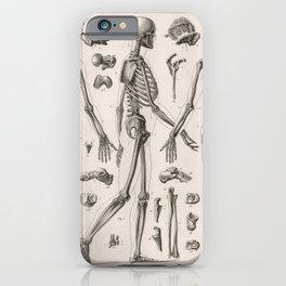 1857 Diagram Anatomy including Skeletons iPhone Case