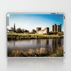 Defending the Realm Laptop & iPad Skin