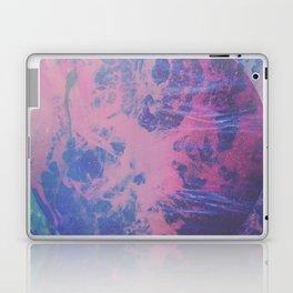 ROE Laptop & iPad Skin