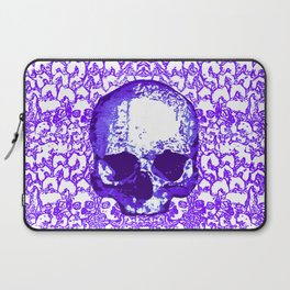 What Hope? Purple Laptop Sleeve