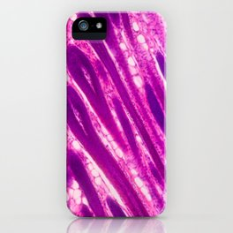 Skin at the Micro level iPhone Case