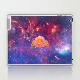 For Better or For Worse Laptop & iPad Skin