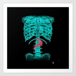 Nervous Human Xray Art Print