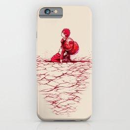 Sad Boy iPhone Case