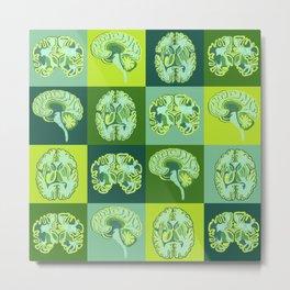 Brain Sections Metal Print