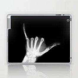 Hang Loose X-Ray Laptop & iPad Skin