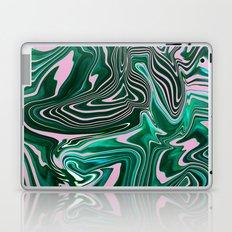 Palms Laptop & iPad Skin
