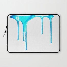 Sky Splatter (F0r cases, skins, and shirts) Laptop Sleeve