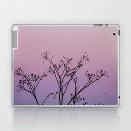 Faded Glory Laptop & iPad Skin