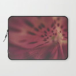 My Imperfections Laptop Sleeve
