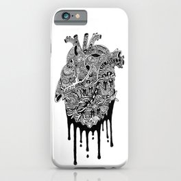 Never Forget iPhone Case