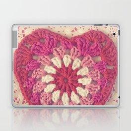 Crochet Valentine Laptop & iPad Skin
