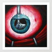 FEVR: Lensectomy Art Print