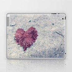 Love is ..... Everywhere. Laptop & iPad Skin