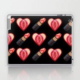 Love and Lipstick Laptop & iPad Skin