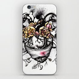 The Wounded Frida Kahlo iPhone Skin