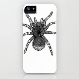 White Knee iPhone Case