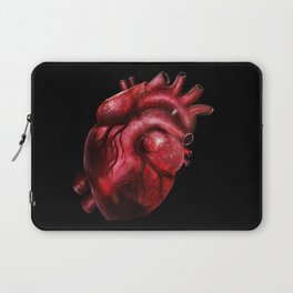 Why I aorta (II) Laptop Sleeve