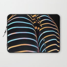 2634s-AK Striped Thighs Bottoms Up Intimate Abstract by Chris Maher Laptop Sleeve