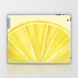 Lemony Goodness Laptop & iPad Skin