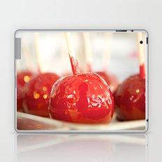 Candy Apples Laptop & iPad Skin
