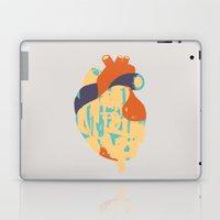 Heart:Released Laptop & iPad Skin