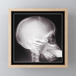 Foot In Mouth X-Ray Framed Mini Art Print