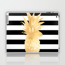Gold Pineapple Black and White Stripes Laptop & iPad Skin