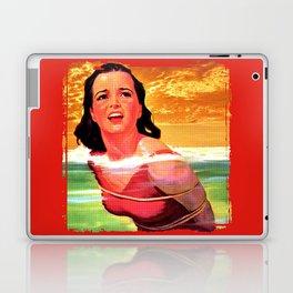 Beach Blanket Bondage Laptop & iPad Skin