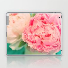 {You are beautiful} Laptop & iPad Skin