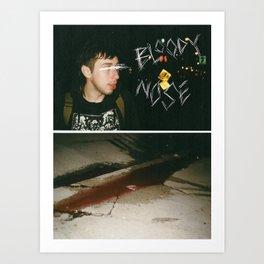 Bloody Nose Art Print