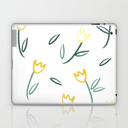 Yellow Tulips Laptop & iPad Skin