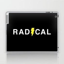 Radical - White on Black Laptop & iPad Skin