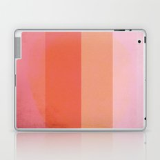 Stop complaining, Do something! Laptop & iPad Skin