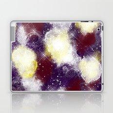 Express Laptop & iPad Skin