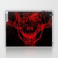 Apple Tree Death Laptop & iPad Skin